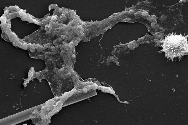 Kryt na iPhone mikroorganismus